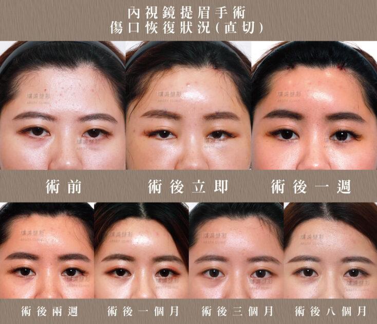 內視鏡提眉疤痕恢復期 2