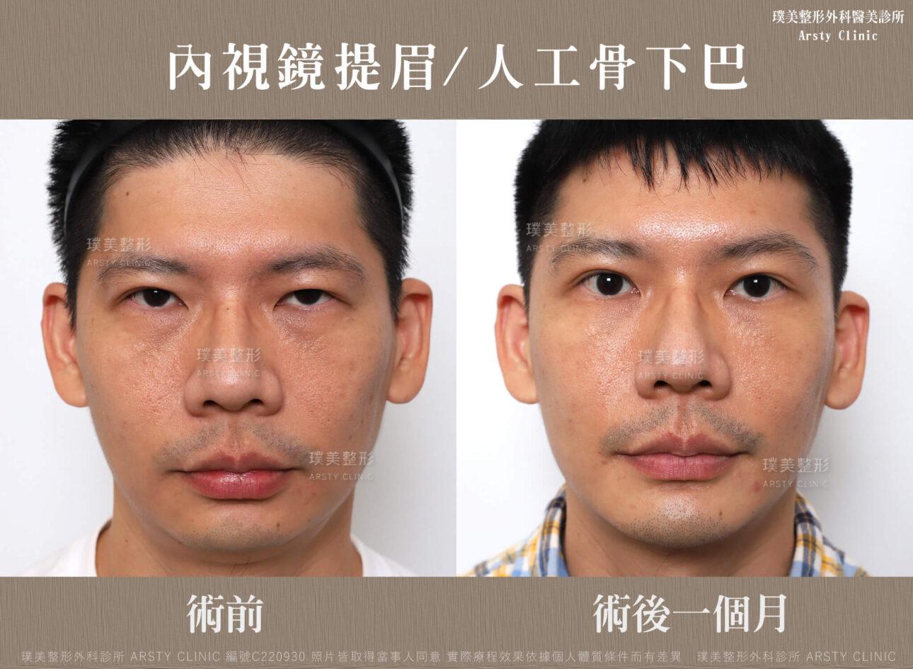 內視鏡提眉 人工骨下巴 1MC220930BA 01