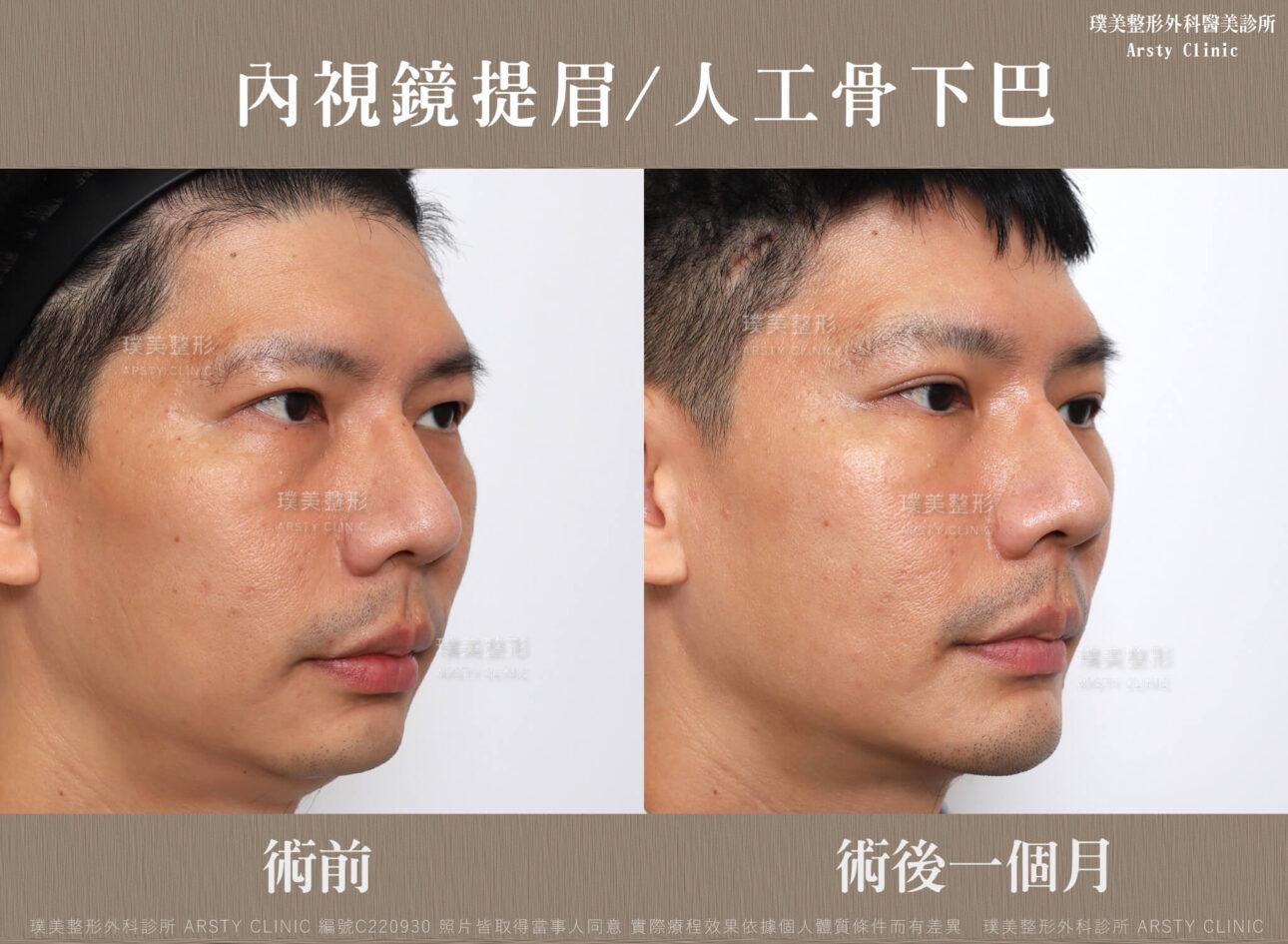 內視鏡提眉 人工骨下巴 1MC220930BA 04
