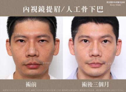 內視鏡提眉 人工骨下巴 3MC220930BA 01