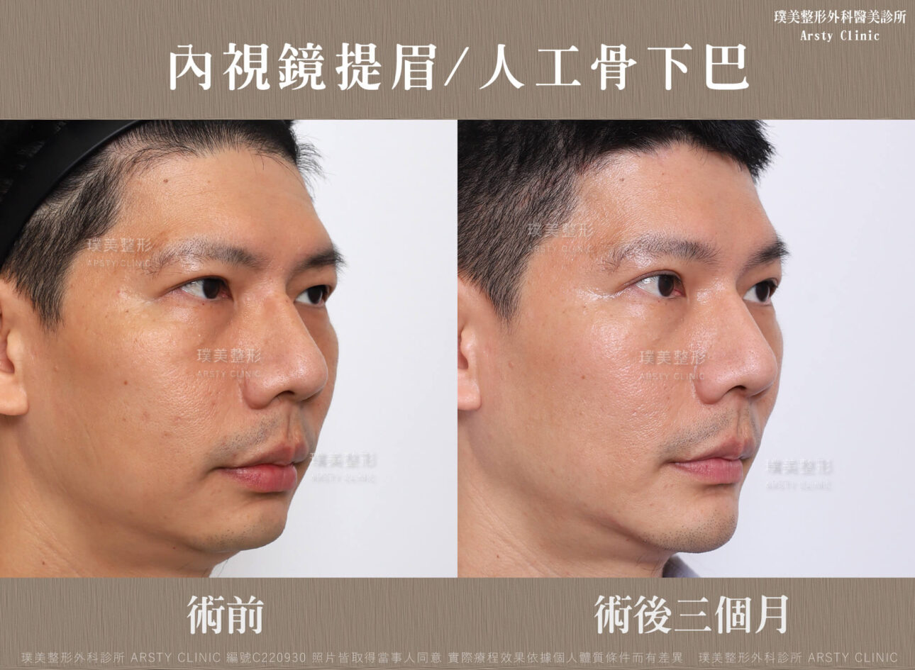 內視鏡提眉 人工骨下巴 3MC220930BA 04