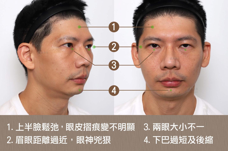 內視鏡提眉 人工骨下巴 C220930BA