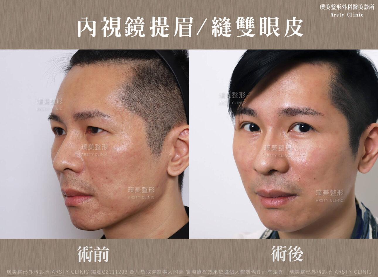 內視鏡提眉 縫雙眼皮 C211203BA03 2 1