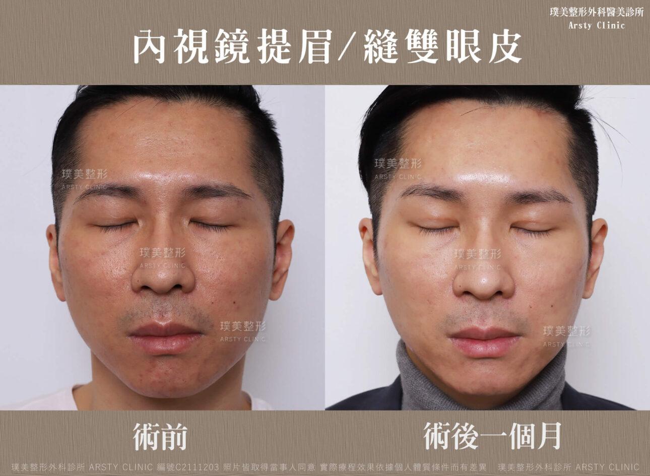 內視鏡提眉 縫雙眼皮 C211203BA03 2 3