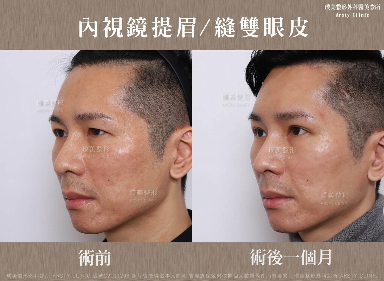 內視鏡提眉 縫雙眼皮 C211203BA03 2 6