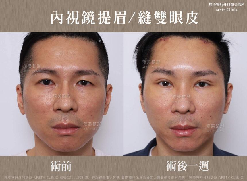 內視鏡提眉 縫雙眼皮 C211203BA03 2 8