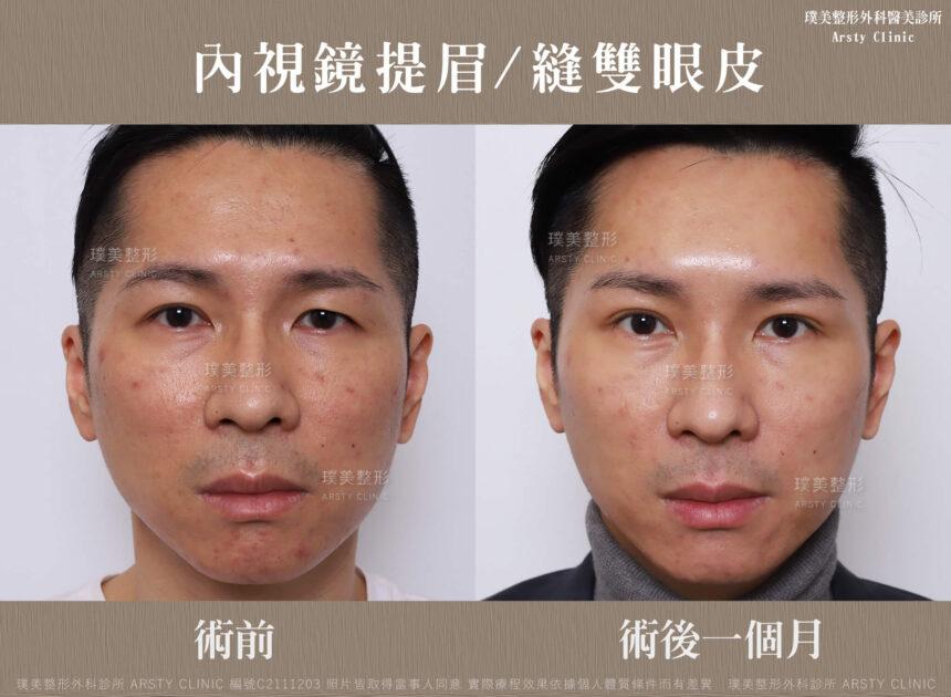 內視鏡提眉 縫雙眼皮 C211203BA1M01