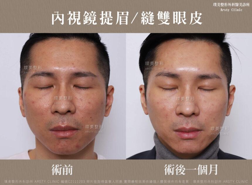 內視鏡提眉 縫雙眼皮 C211203BA1M02
