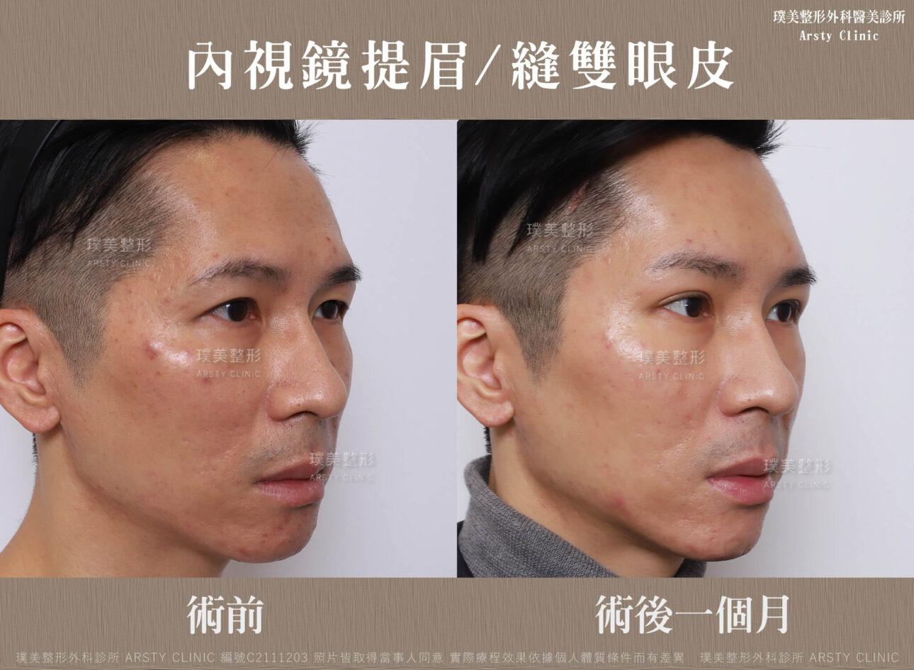 內視鏡提眉 縫雙眼皮 C211203BA1M03