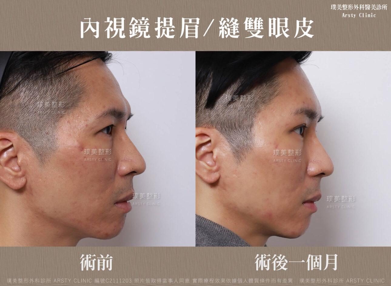 內視鏡提眉 縫雙眼皮 C211203BA1M04