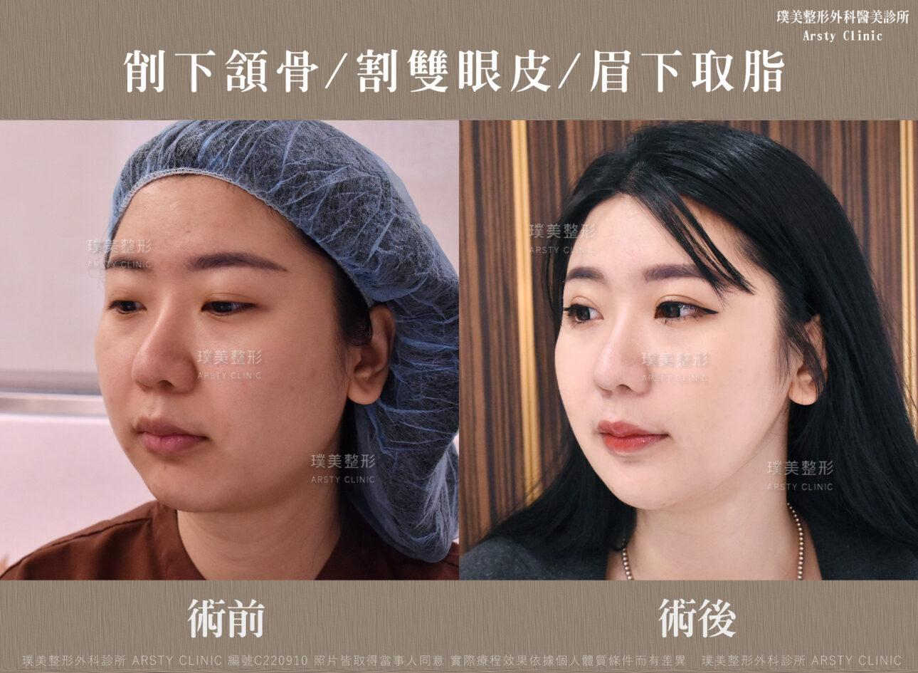 削下頷骨 割雙眼皮 眉下取脂 C220910BA生活4