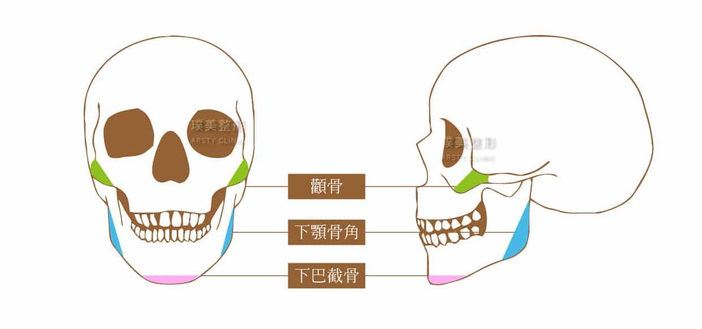 削骨三部位示意圖1240X582