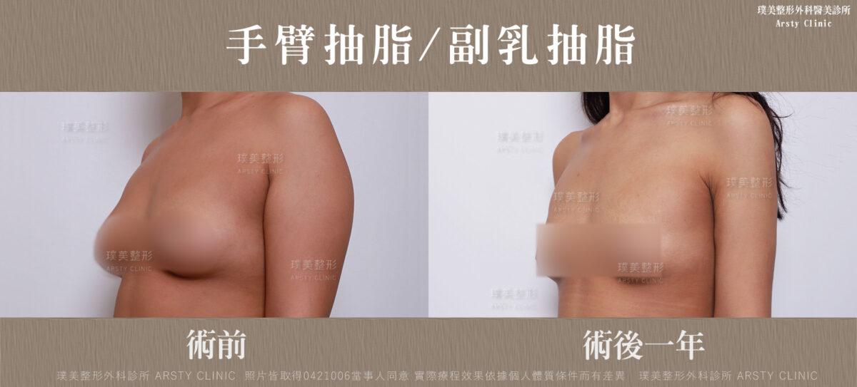 副乳抽脂手臂抽脂前後對比