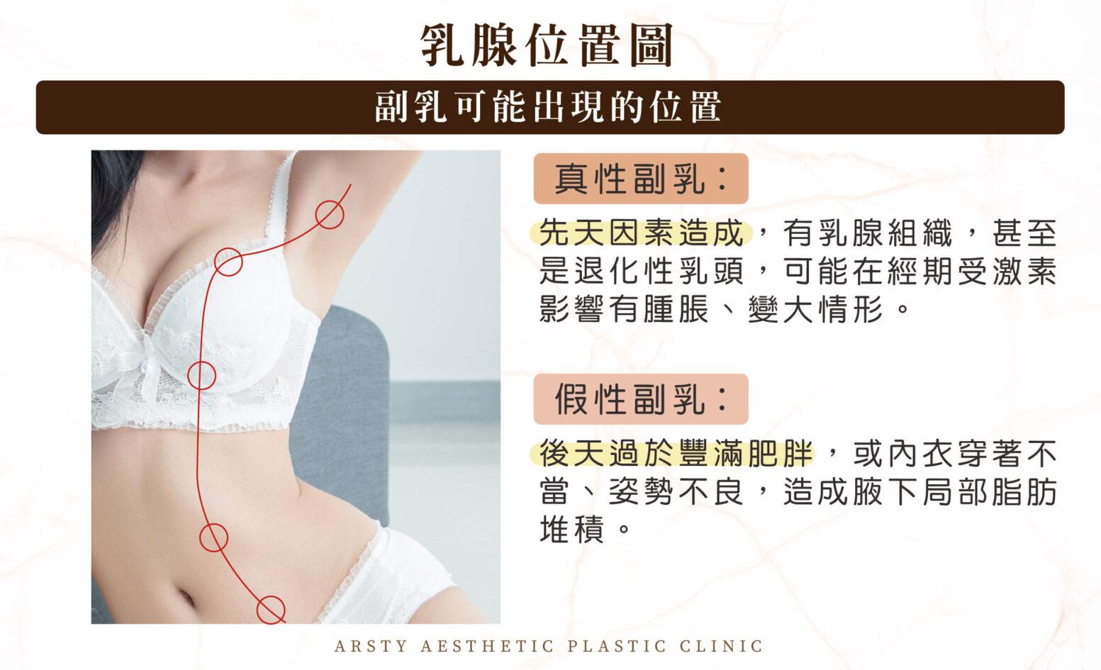 副乳_乳腺位置圖