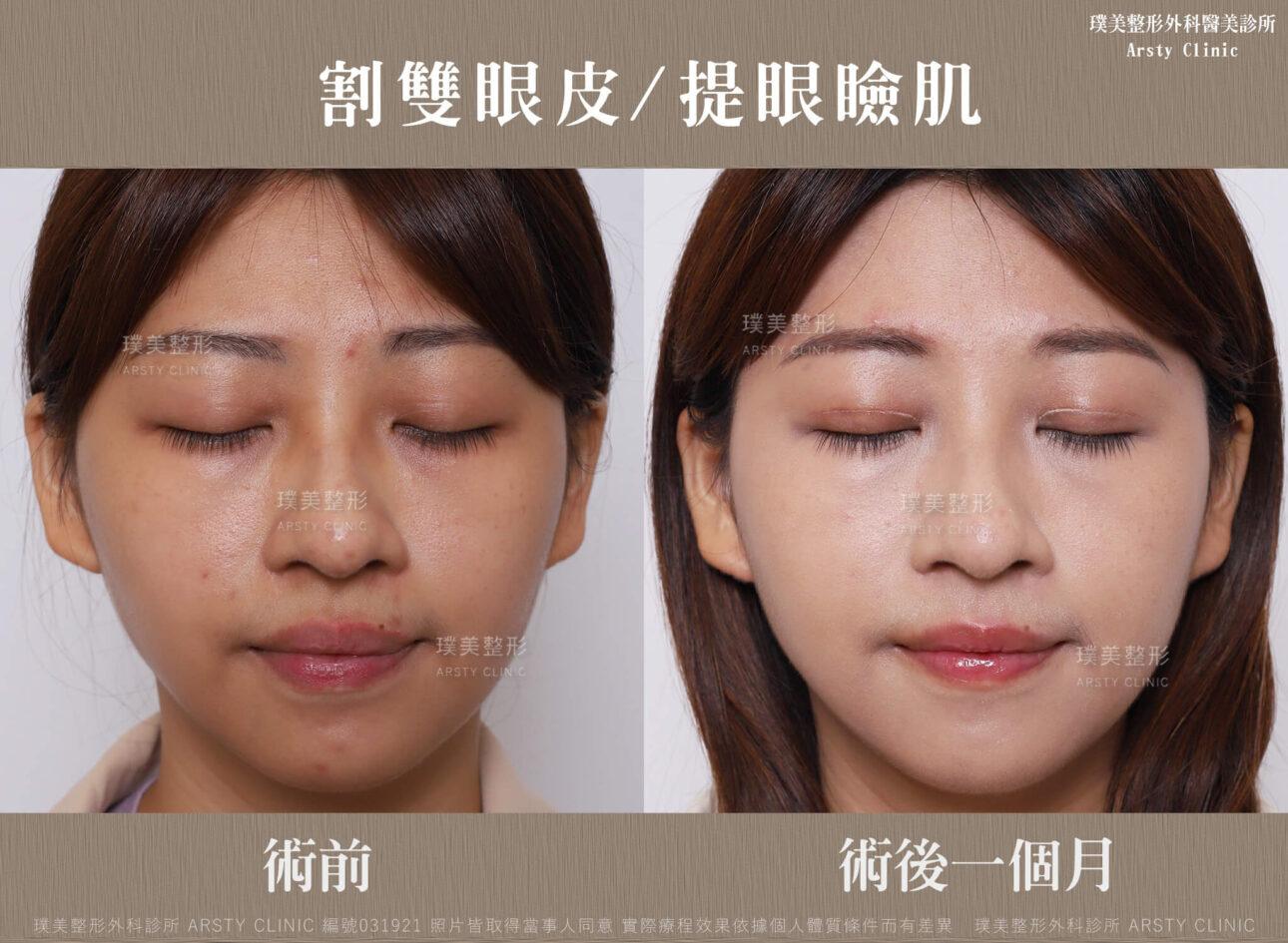 割雙眼皮、提眼瞼肌 031921 1MBA02
