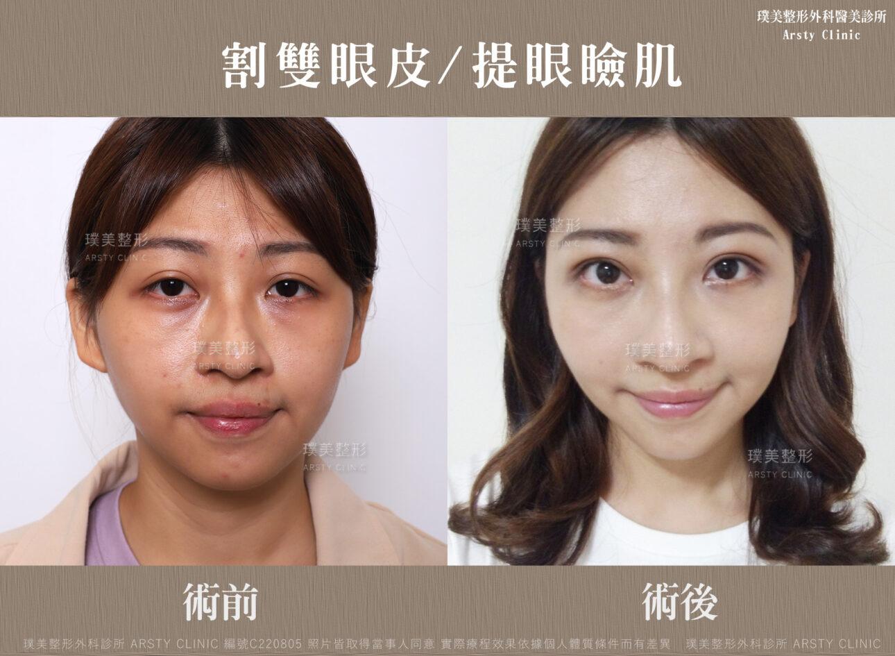 割雙眼皮、提眼瞼肌 C220805 生活BA01