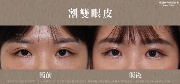 割雙眼皮重修 C221028BA 局 雙眼皮