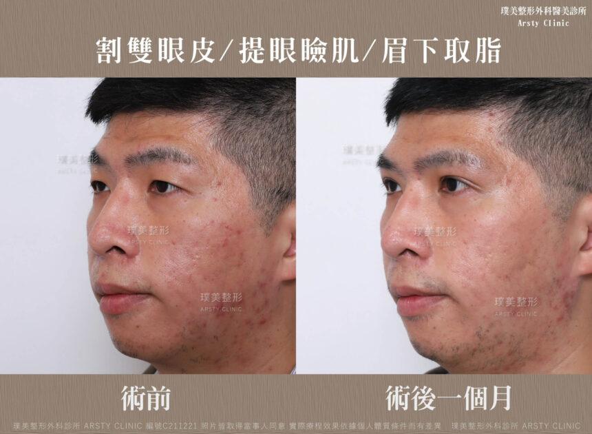 割雙眼皮 提眼瞼肌 眉下取脂 C211221BA02