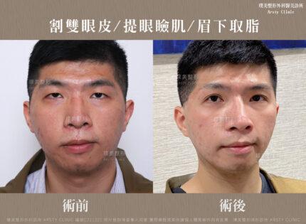 割雙眼皮 提眼瞼肌 眉下取脂 C211221BA04