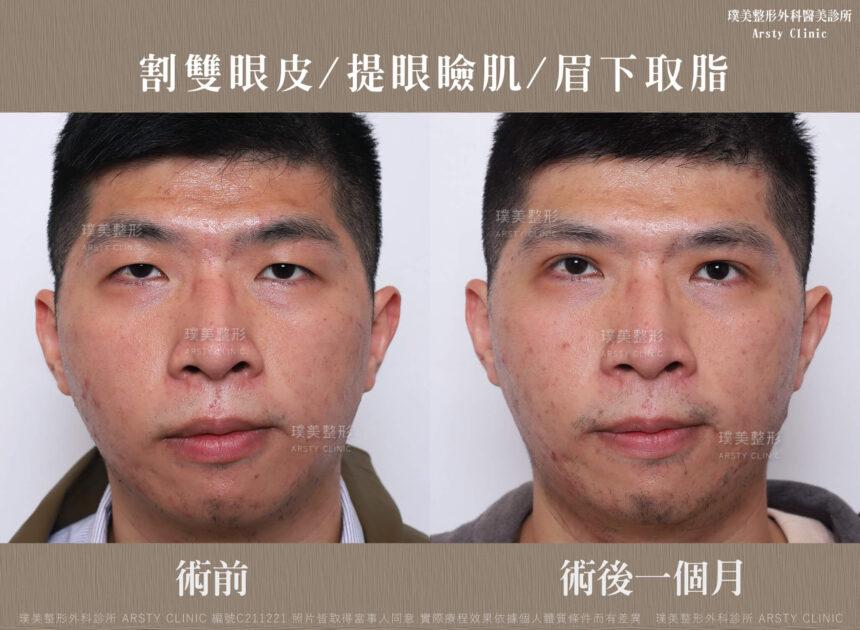 割雙眼皮 提眼瞼肌 眉下取脂 C211221BA 01