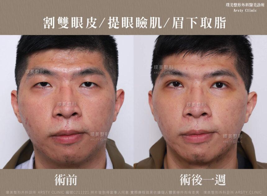 割雙眼皮 提眼瞼肌 眉下取脂 C211221BA 1W01