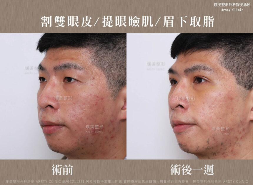 割雙眼皮 提眼瞼肌 眉下取脂 C211221BA 1W03