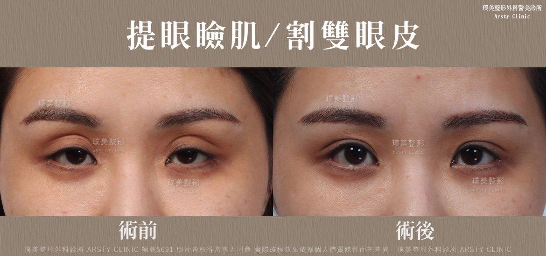 割雙眼皮_提眼肌肌5691BA-局