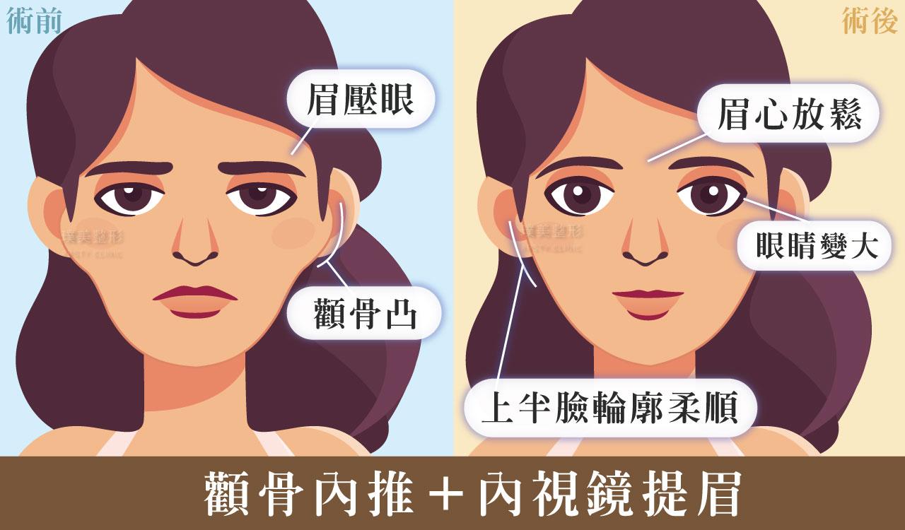 圖示 顴骨凸眉壓眼眼皮下垂無神感1