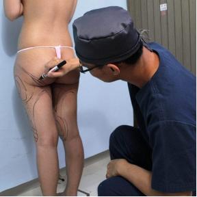 威塑抽脂步驟︰術前醫師在需抽脂的部位畫標記