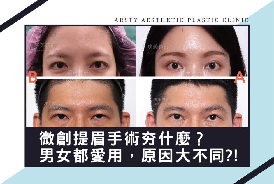 提眉手術男女適用