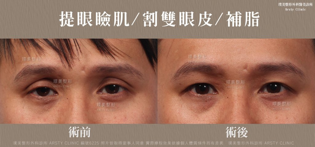 提眼肌_割雙眼皮_補脂-6225BA-局