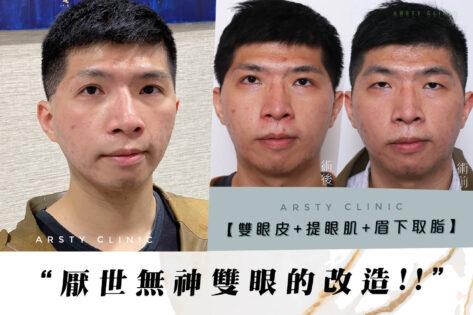 割雙眼皮_提眼瞼肌_眉下取脂-C211221BA04案例