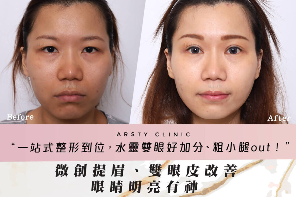 提眉醫師推薦C220904-提眉合併割雙眼皮手術開眼頭眼尾案例封面all67