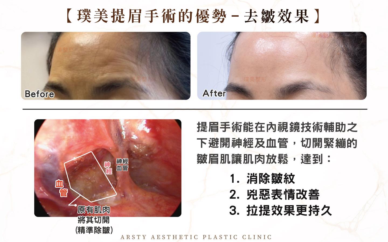 內視鏡提眉手術精準除皺改善兇惡表情持久拉提