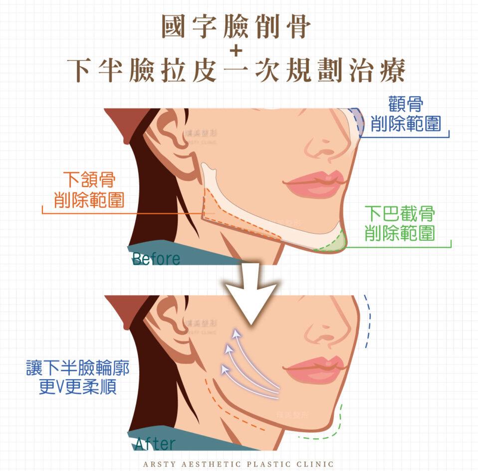 璞美顴骨內推 內視鏡提眉 女性 削骨手術1