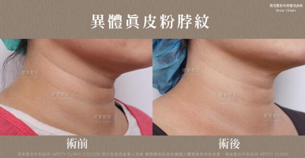 異體真皮粉淡化脖紋、頸紋效果比照