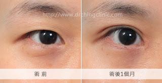 切割式雙眼皮合併開眼頭手術