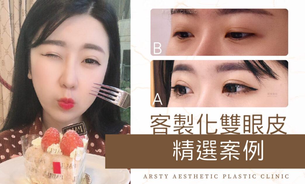 局部案例-客製化雙眼皮封面