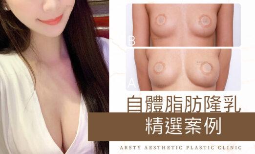 局部案例-自體脂肪隆乳封面