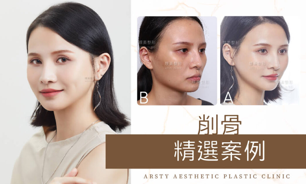 精選案例封面_削骨手術