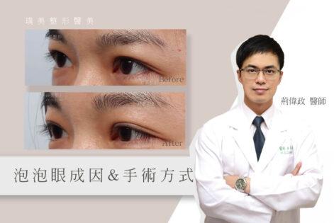 荊醫師觀點_泡泡眼的成因及手術方式