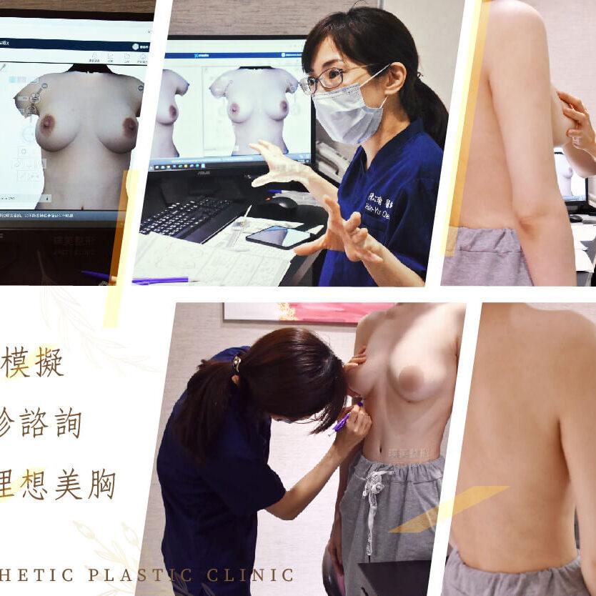隆乳手術陳心瑜醫師諮詢