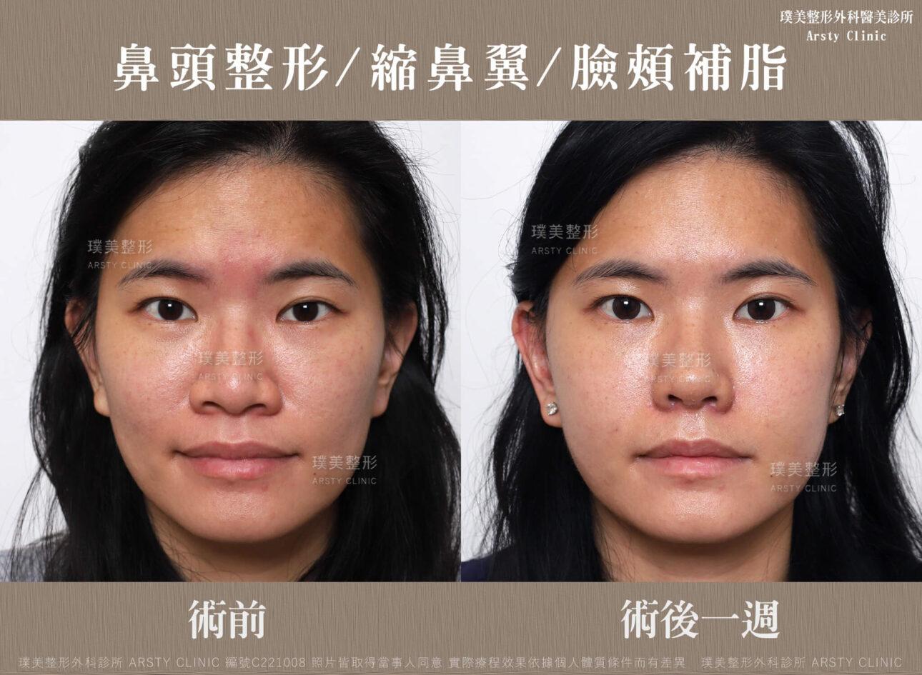 鼻頭整形 縮鼻翼 臉頰補脂 C221008BA一W01