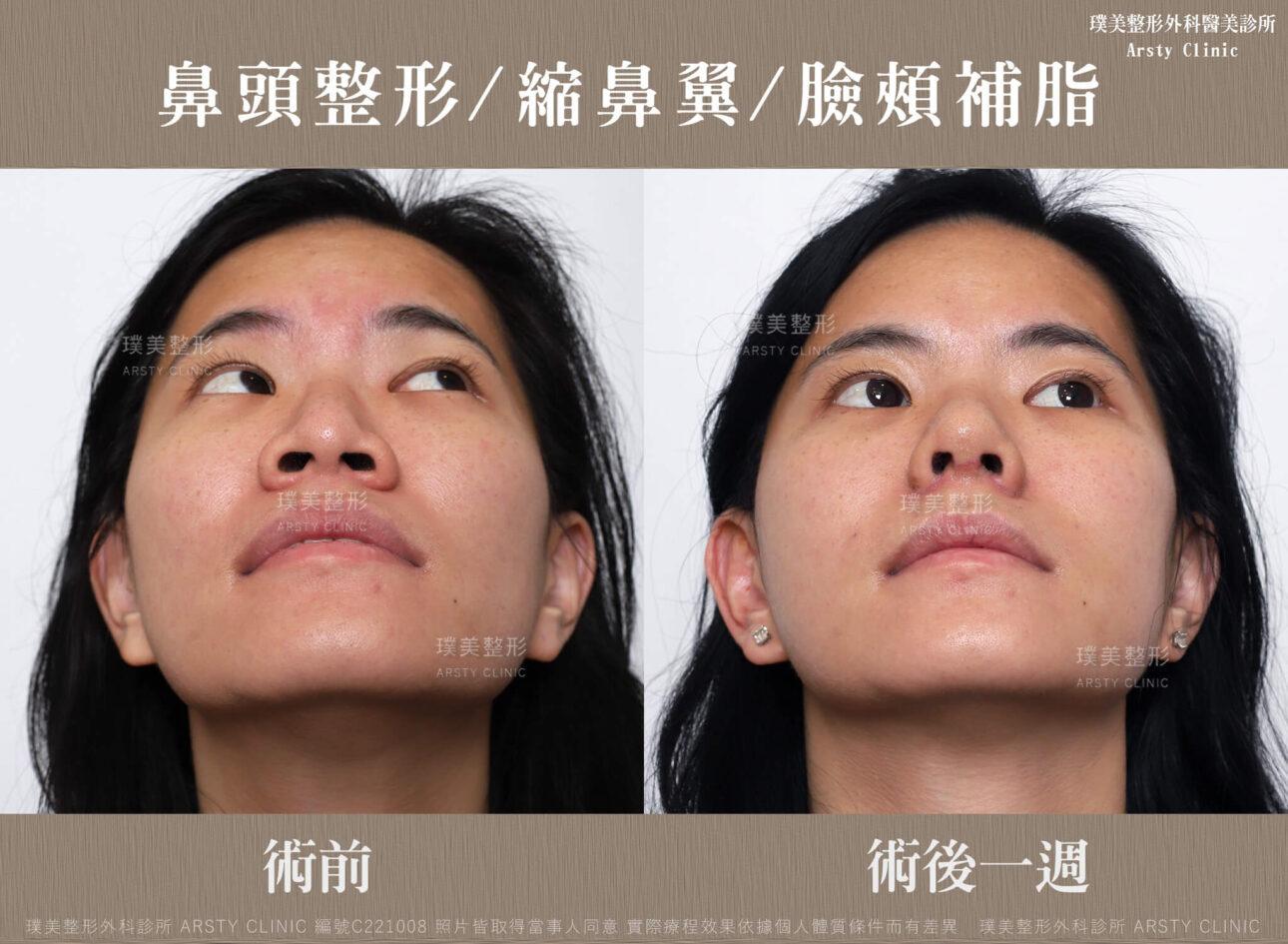鼻頭整形 縮鼻翼 臉頰補脂 C221008BA一W02
