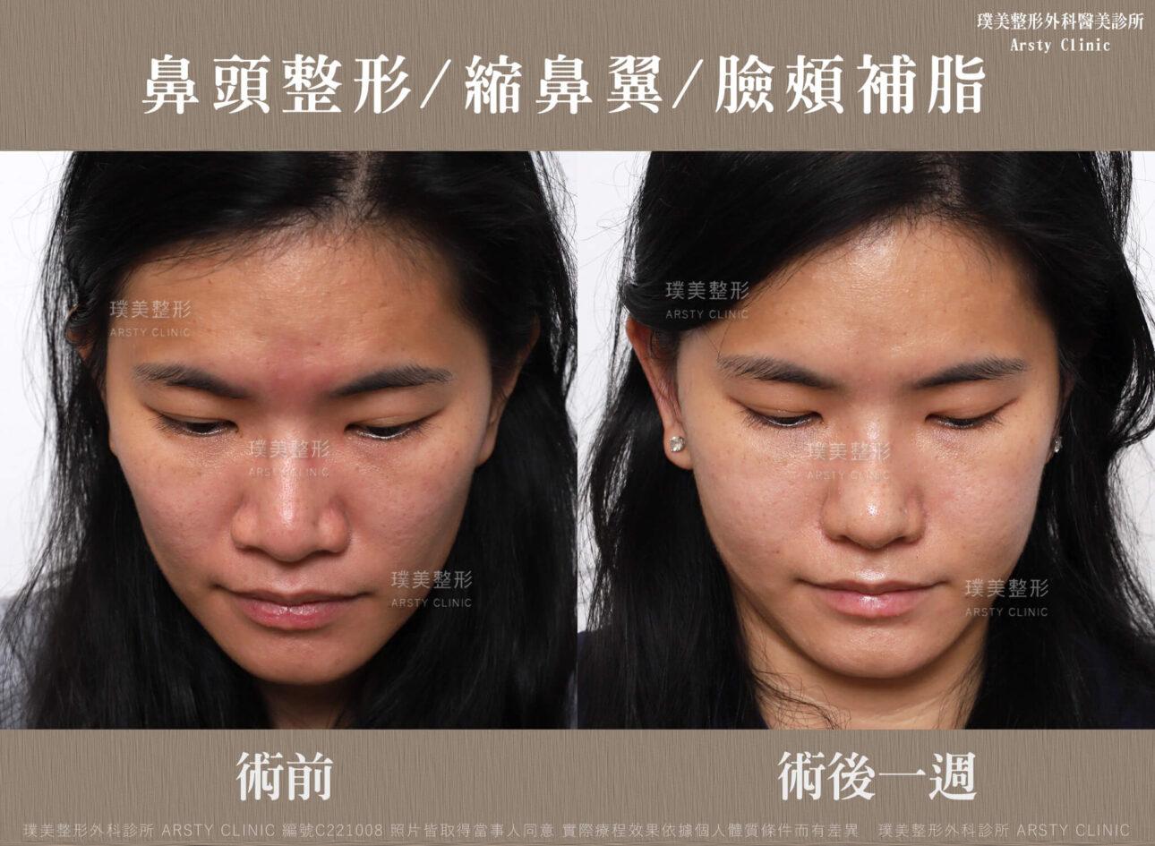 鼻頭整形 縮鼻翼 臉頰補脂 C221008BA一W03