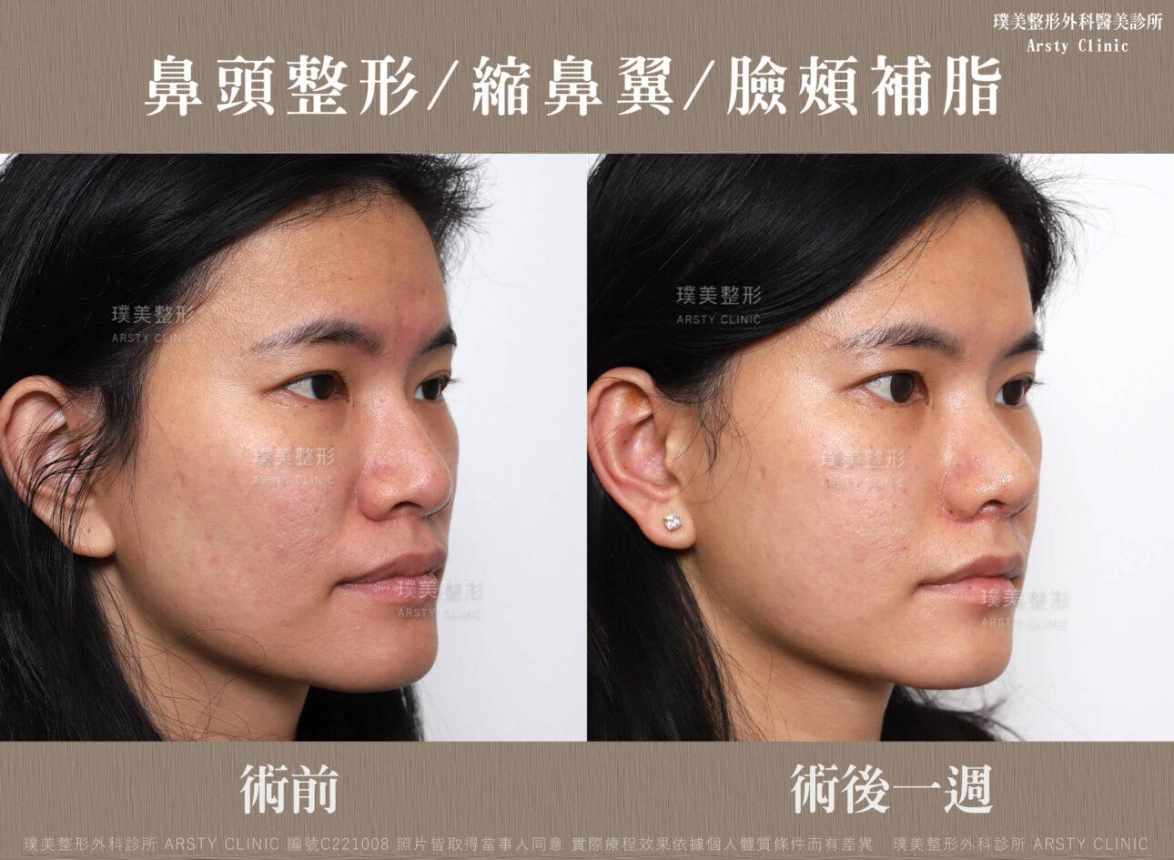鼻頭整形 縮鼻翼 臉頰補脂 C221008BA一W04