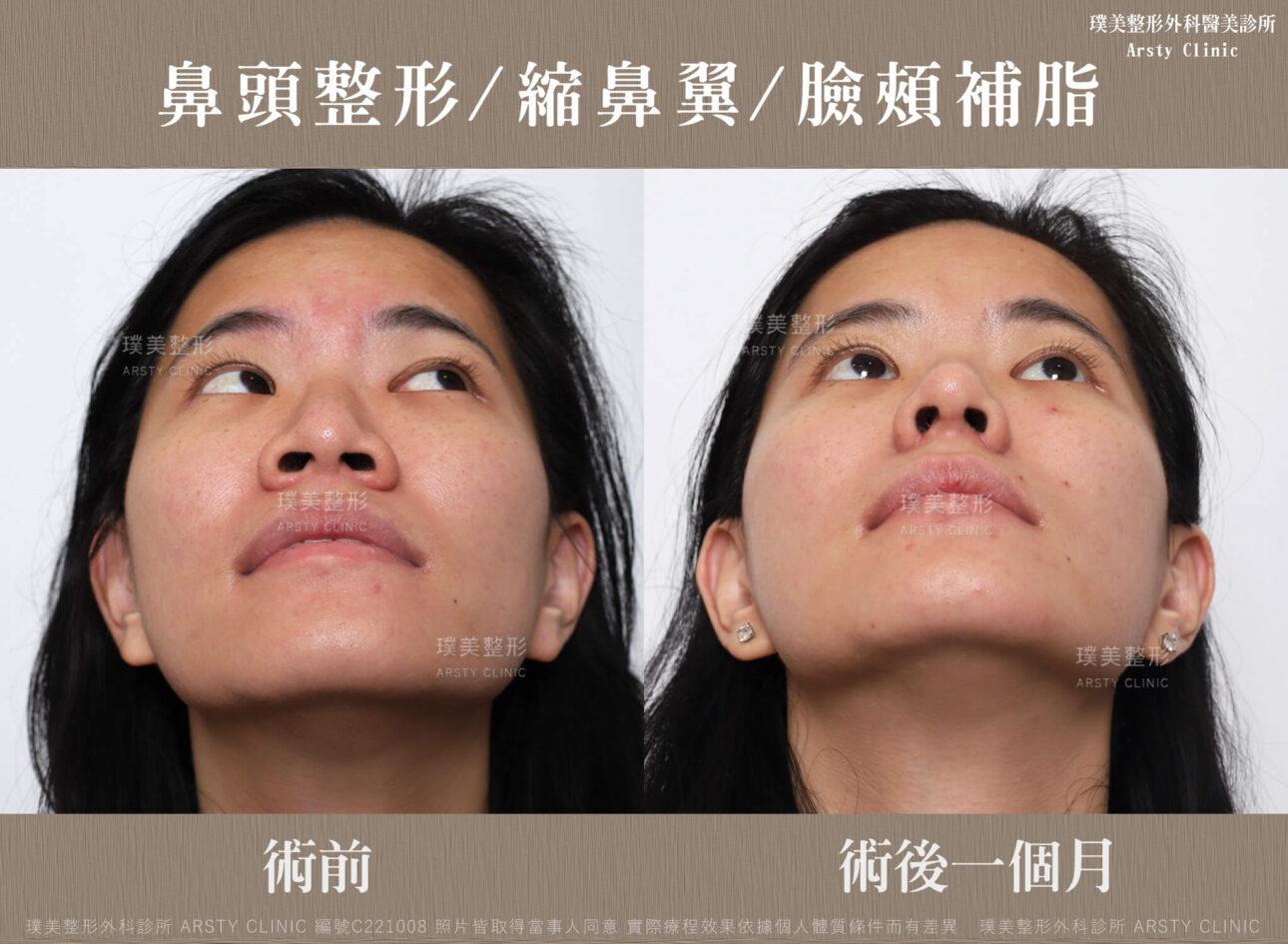 鼻頭整形 縮鼻翼 臉頰補脂 C221008BA1M02