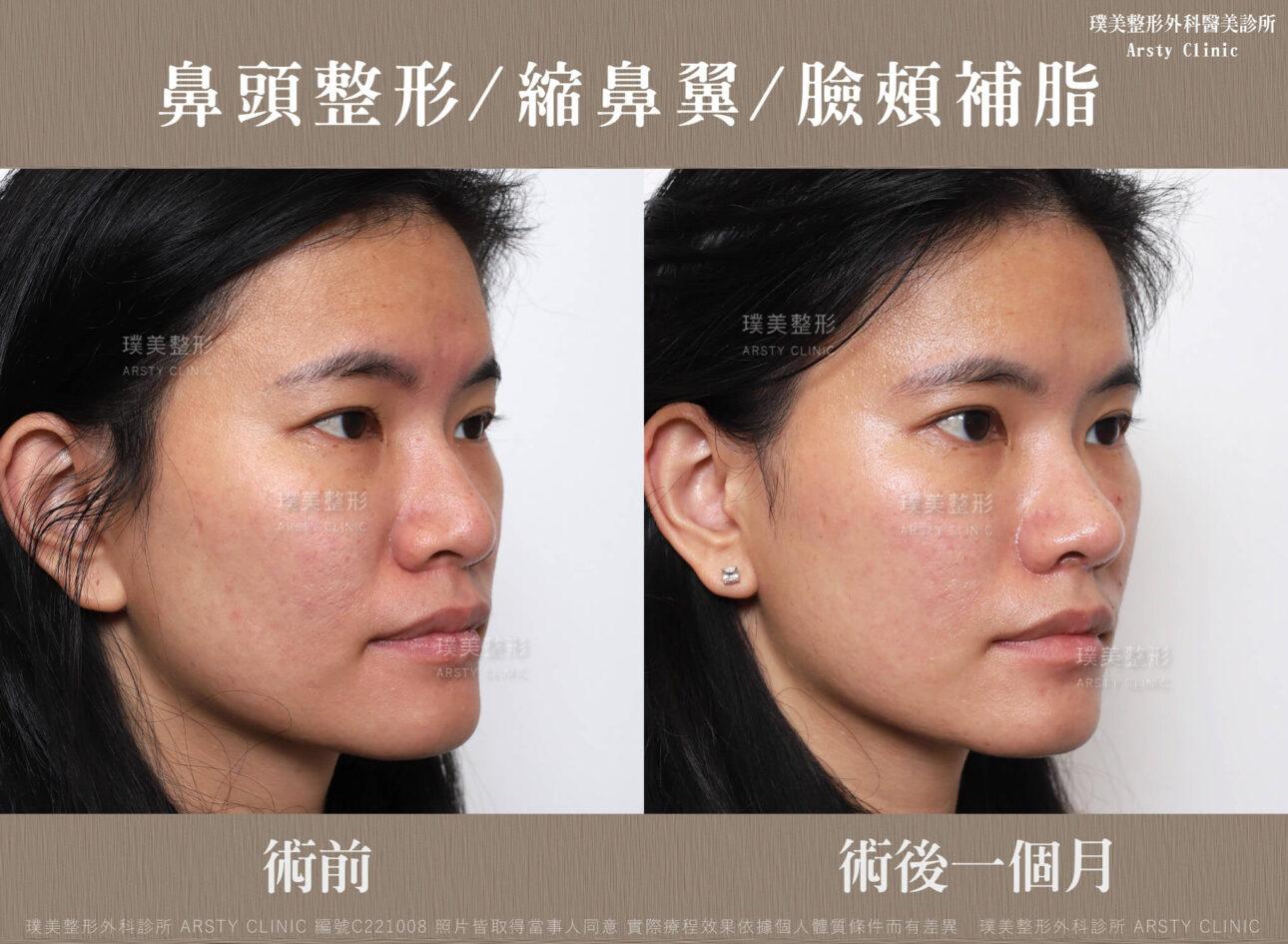 鼻頭整形 縮鼻翼 臉頰補脂 C221008BA1M04