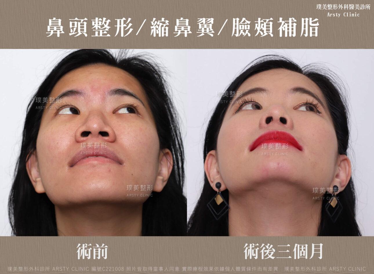 鼻頭整形 縮鼻翼 臉頰補脂 C221008BA3M02