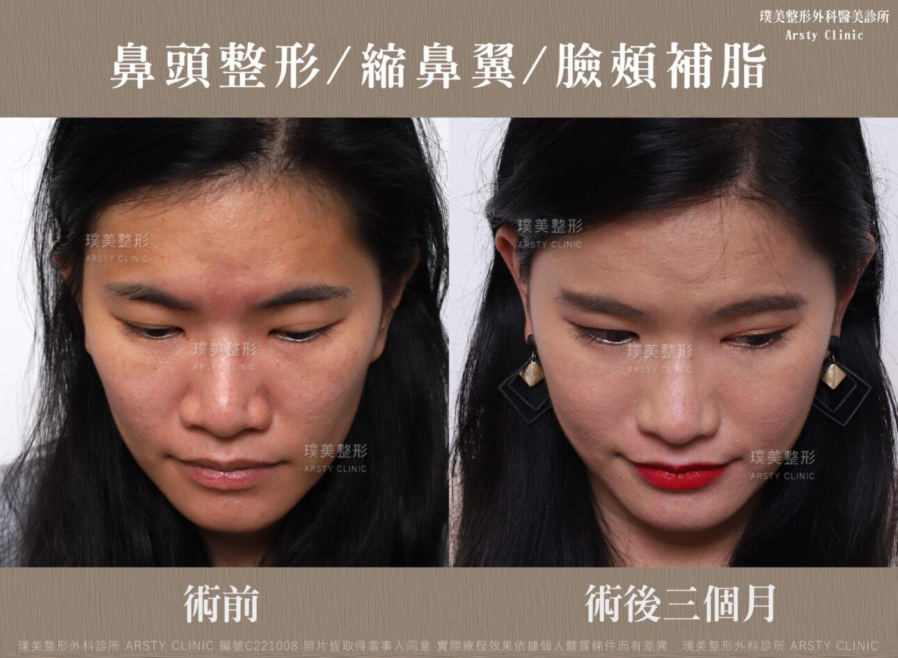 鼻頭整形 縮鼻翼 臉頰補脂 C221008BA3M03